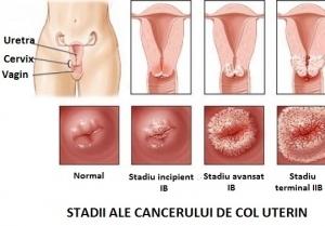 cancer la colon la femei simptome)