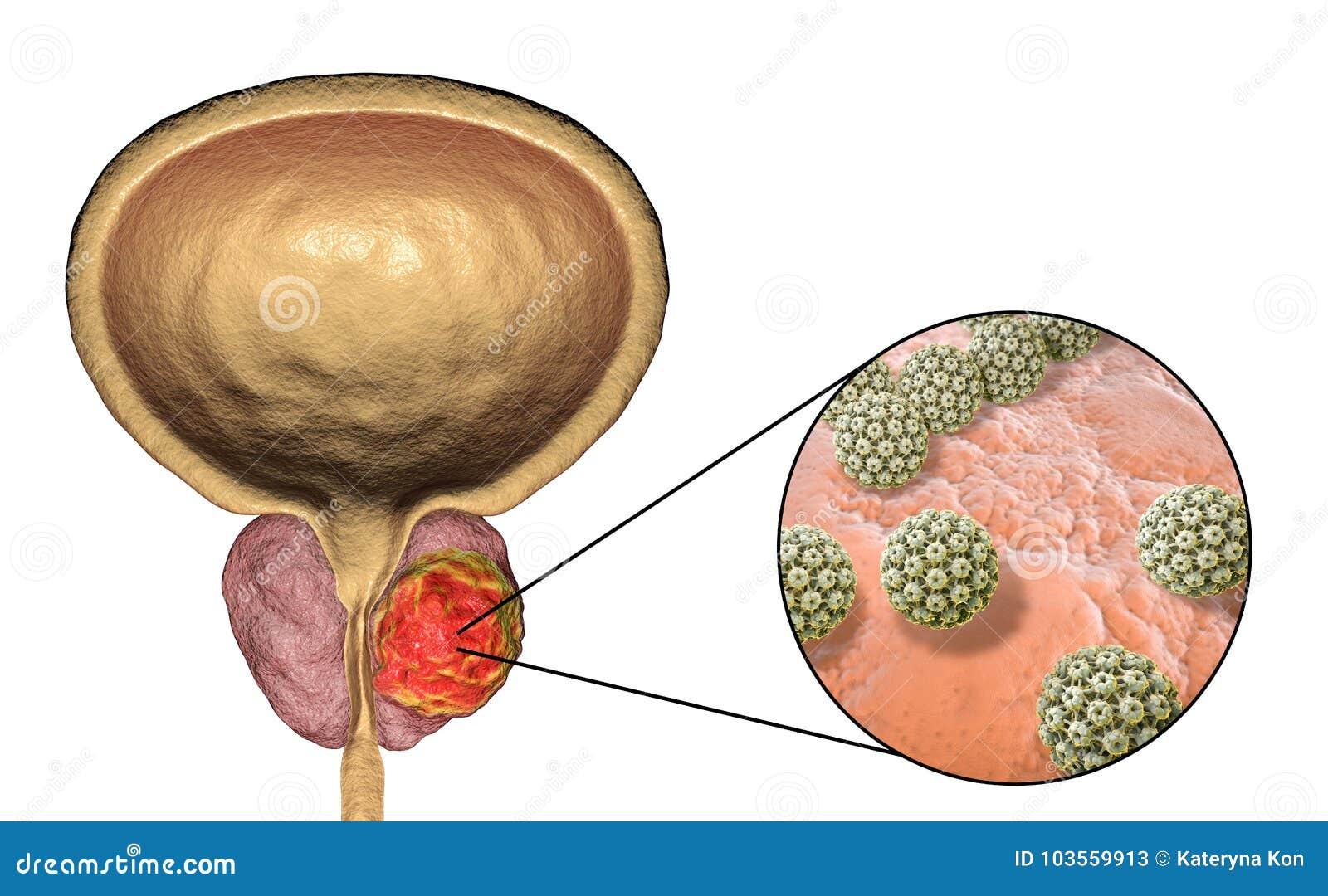 hpv cancer de prostata)