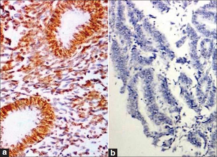 endometrial cancer pten papiloma genitales femeninos