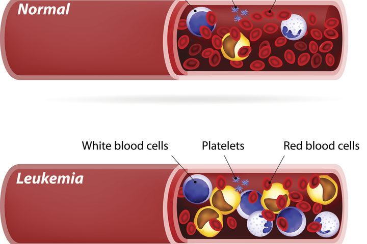 anemia x leucemia)