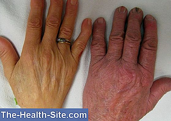 Anemia: Cauze, Simptome, Tipuri, Remedii si Preventie | triplus.ro