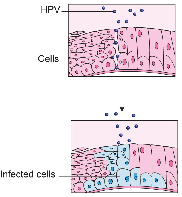 hpv causes skin cancer)