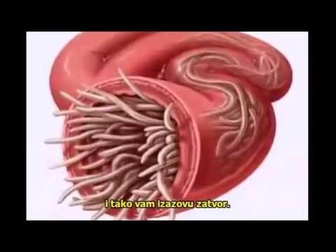 paraziti u telu)
