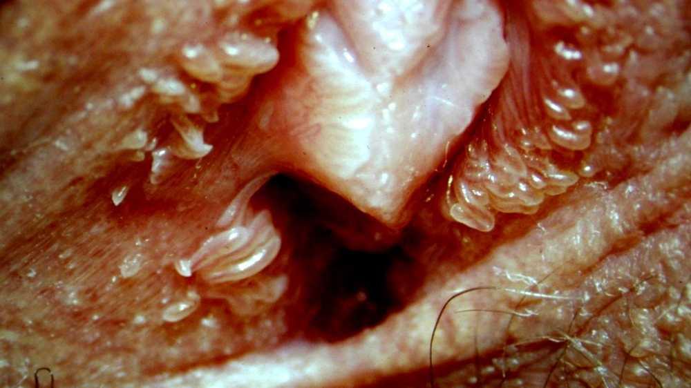 Vestibular papillomatosis burning - triplus.ro