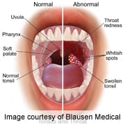 Does hpv on tongue hurt
