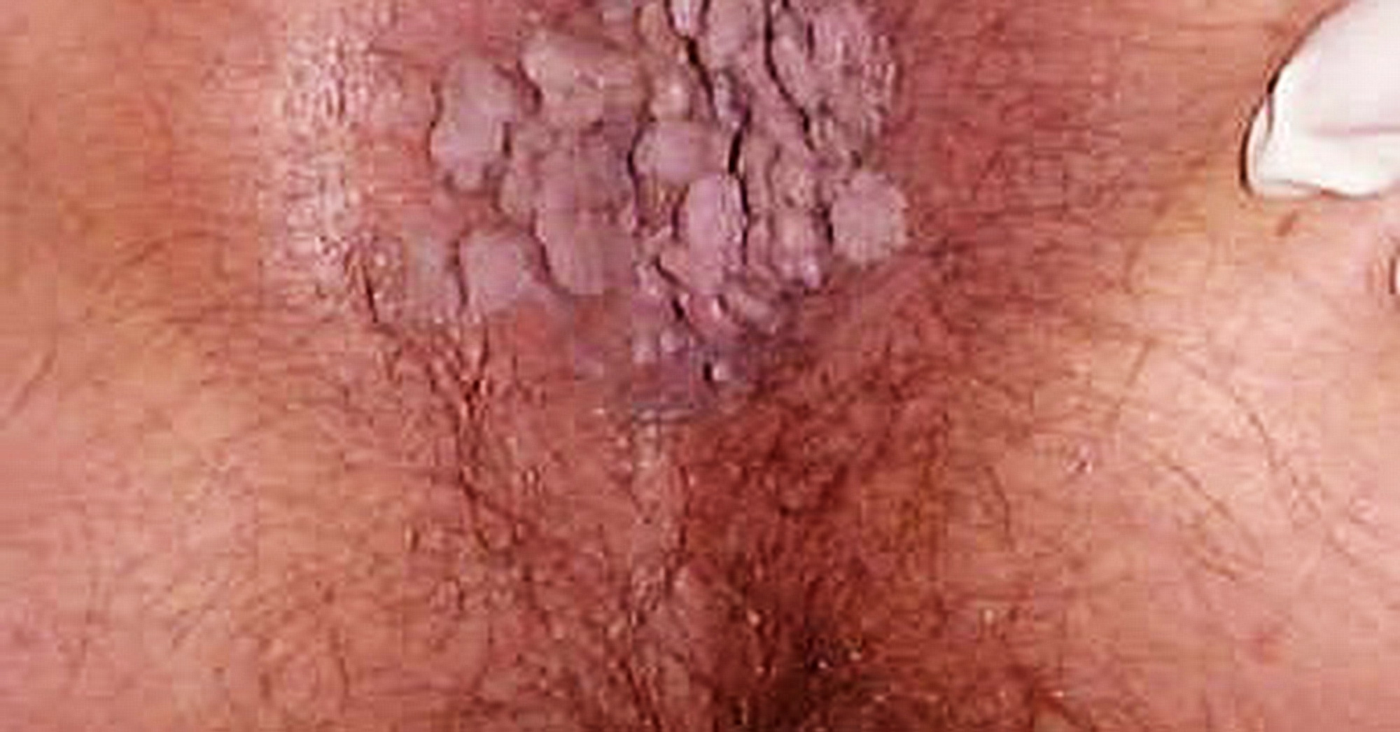 hpv anale sintomi