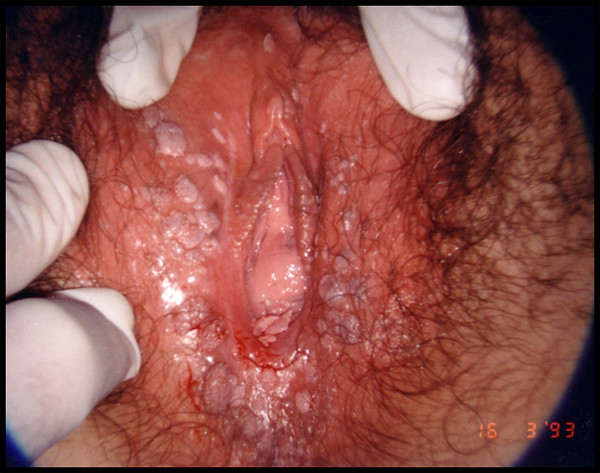 ce medicamente să ia pentru prevenirea viermilor tratament repetat pentru viermi
