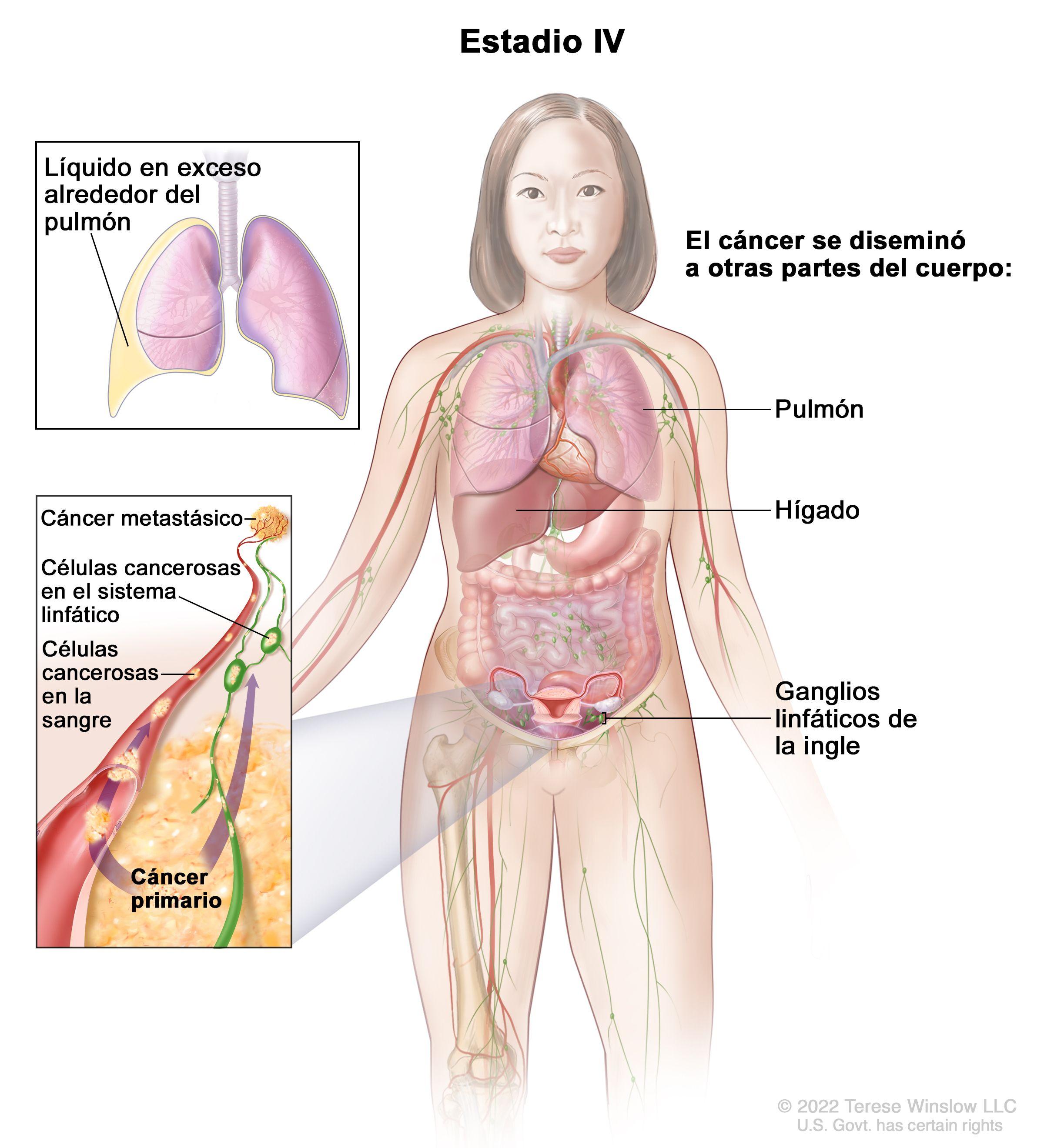 squamous cell papilloma skin pathology anus cu enterobioză