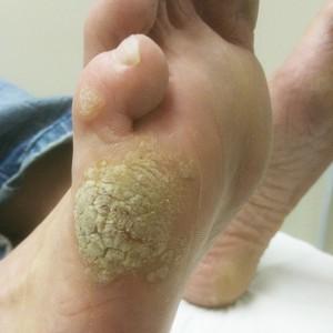 foot verruca cure)