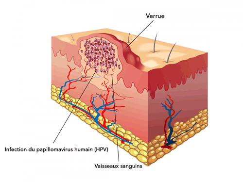 papillomavirus traitement alternatif)