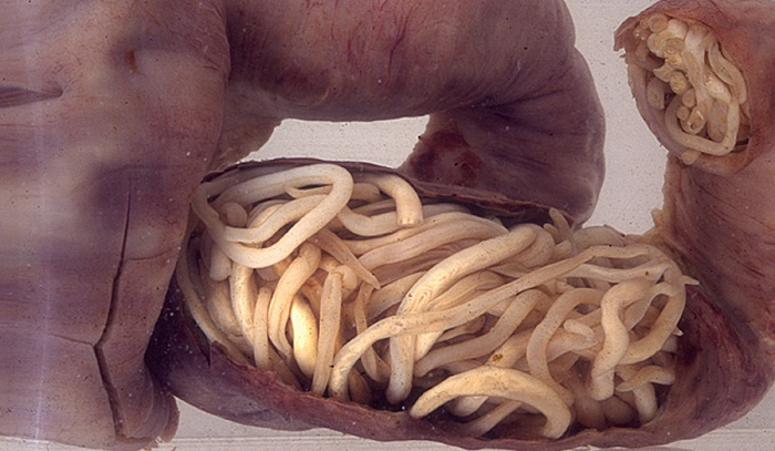paraziti gliste simptomi