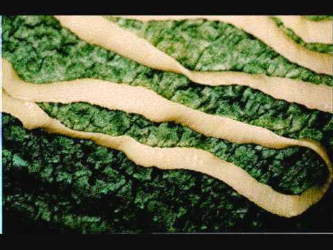 Deparazitare internă câini - Viermi intestinali la câini
