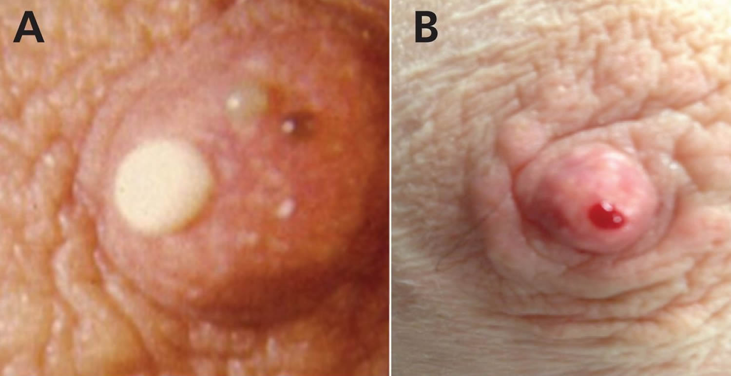 intraductal papilloma in pregnancy)