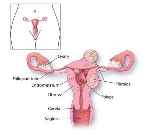 benign cancer of the womb)