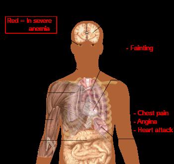 Z ceho je anemie - triplus.ro