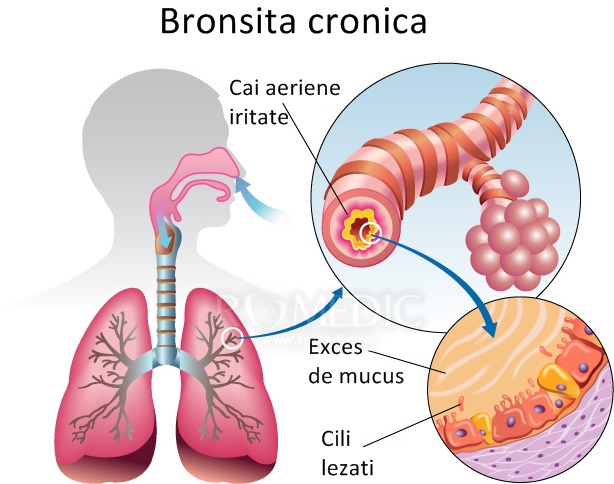 Bronsita - totul despre cauze, simptome, tratament si preventie | triplus.ro