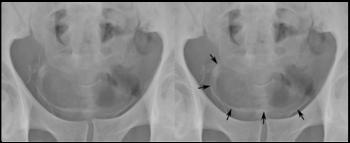 schistosomiasis bladder x ray)