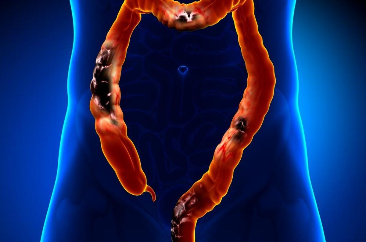 cancer colon symptomes