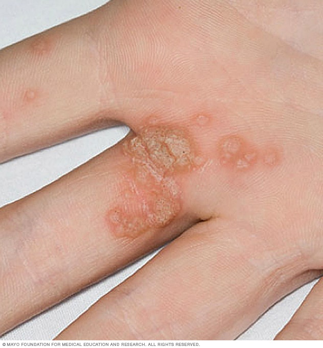 Hpv warts body, HPV o necunoscuta? - Forumul Softpedia Hpv causes warts on feet