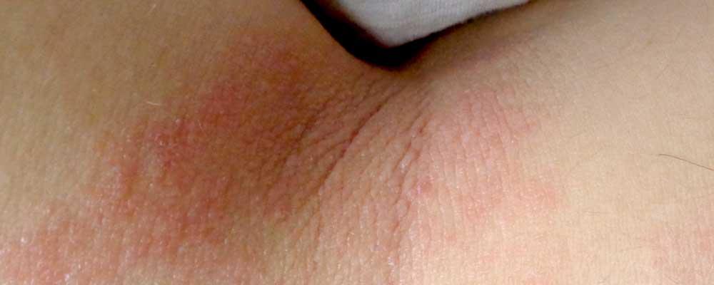 dermatita alergica de contact)