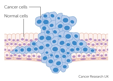 Cancer benign cells, Paraziti ai corpului uman