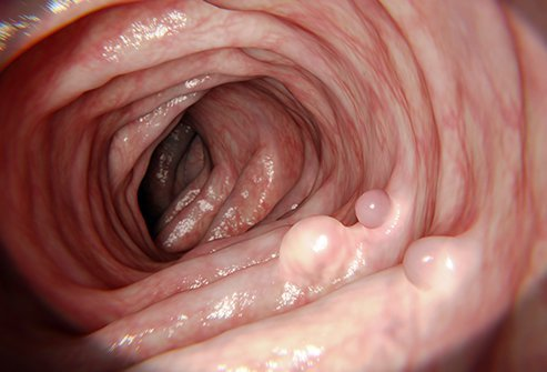 cancer benign polyp)