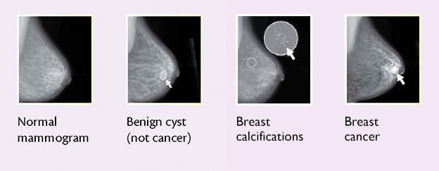 cancer benign tumour cyst)