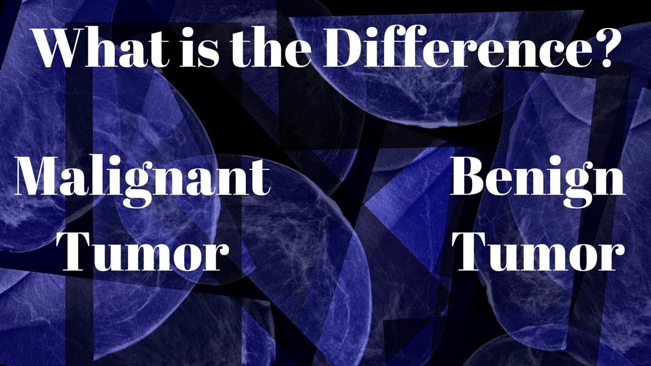 cancer benign versus malignant)