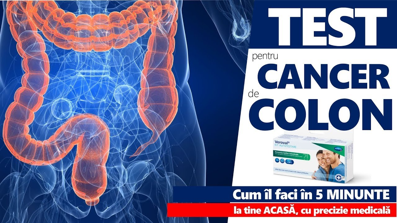 cancer colon femei)