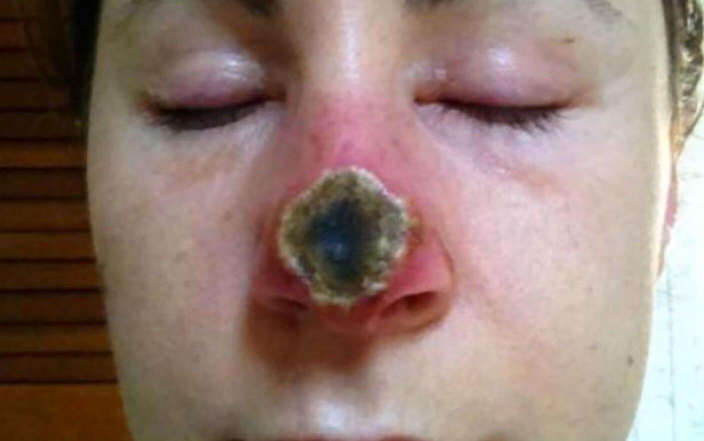 cât de des pot bea medicamente antiparazitare papilloma vescicale classificazione