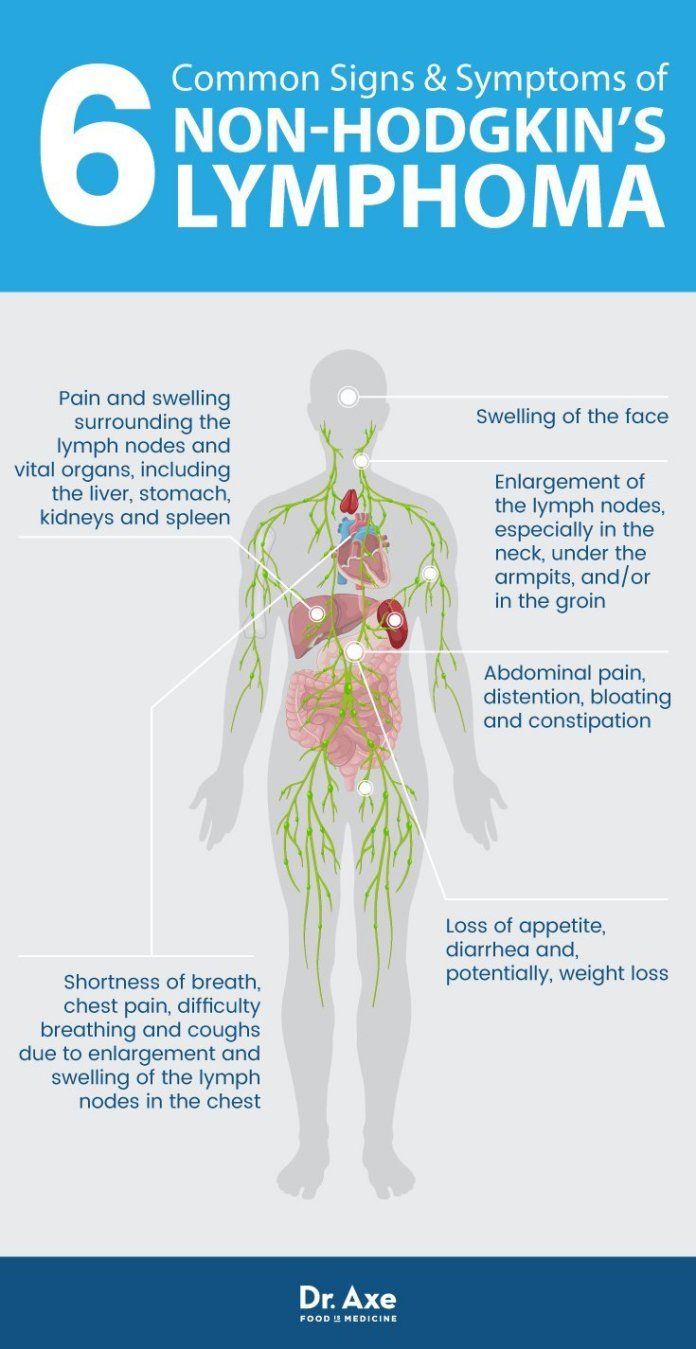 cancer in abdominal lymph nodes symptoms