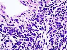 cancer la plamani celule mici negi genitale pe tratamentul limbii