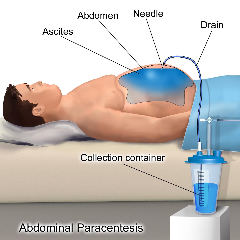 cancer liquido abdominal)