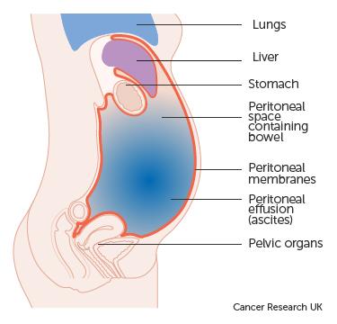 cancer peritoneal symptoms
