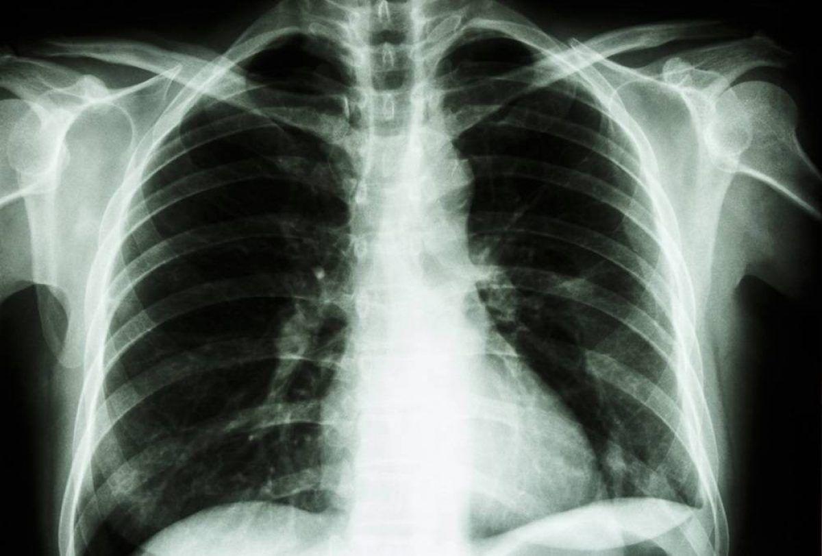 Cancer plamani copii, Cancerul pulmonar la copii: cum se manifesta si cum se trateaza