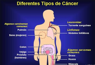 cancer sarcoma tipos