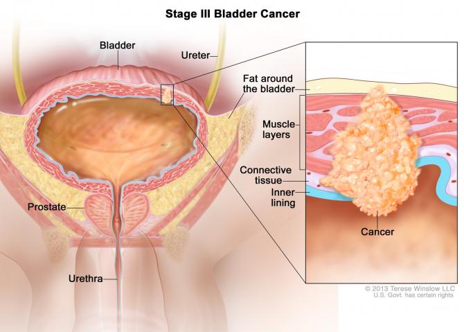 cancer vezica urinara stadiu 3