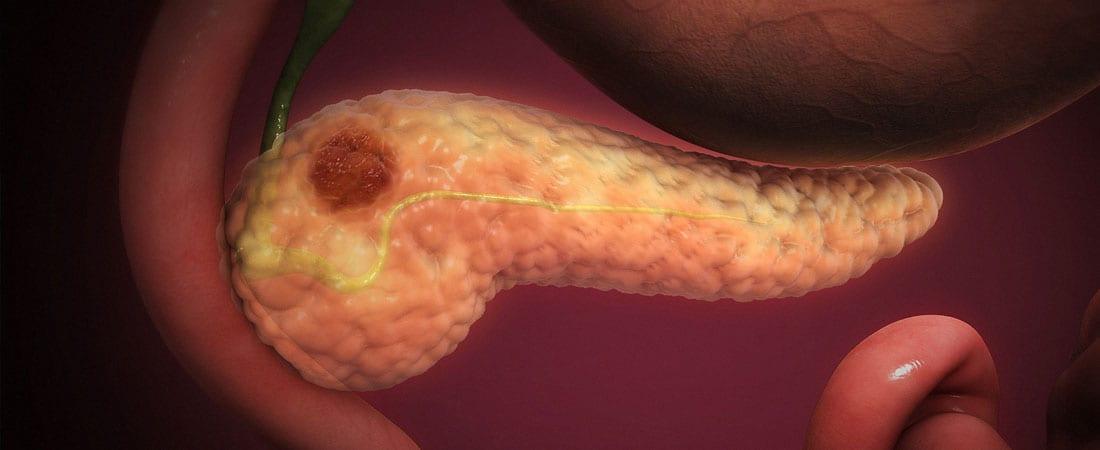 cancerul endocrin