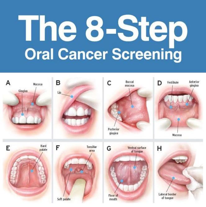 Cancerul gurii - simptome și tratament