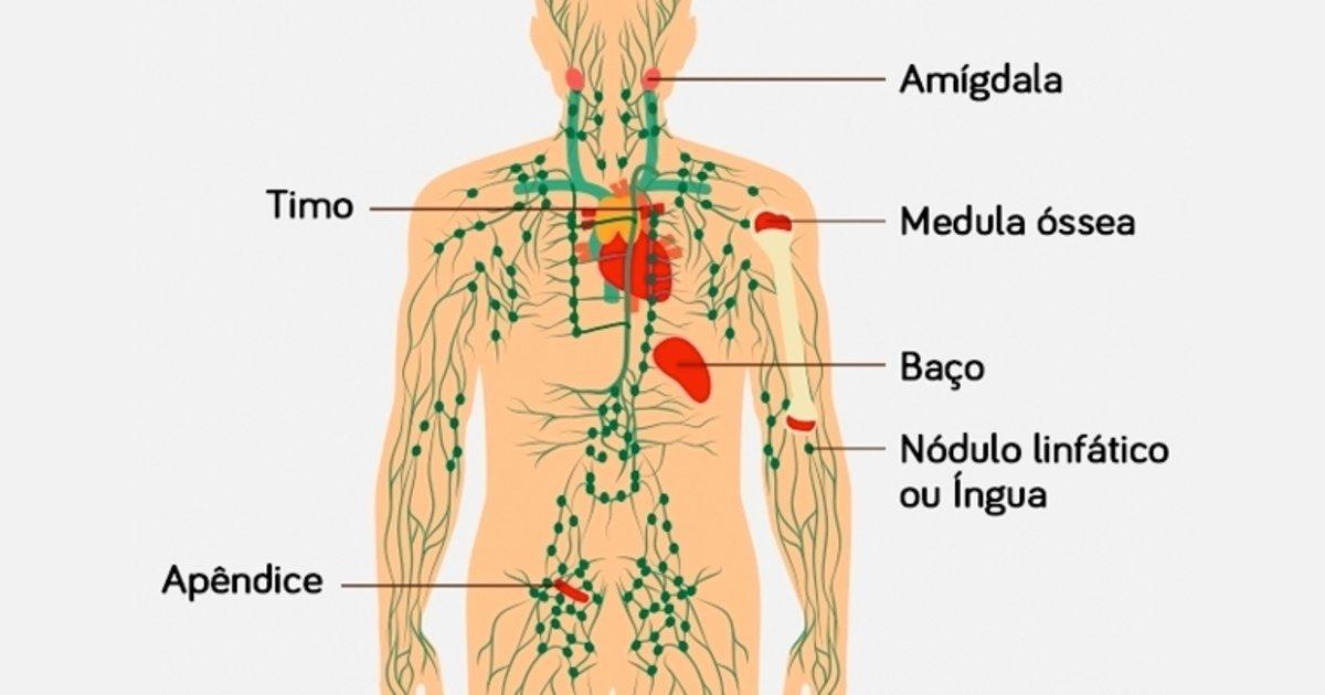 cauze cancer ganglionar)