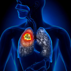 Cancer Pulmonar Microcelular | Pacient cancer