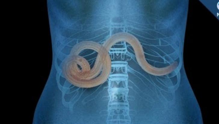 ce paraziți pot fi în corpul uman mullerian papilloma