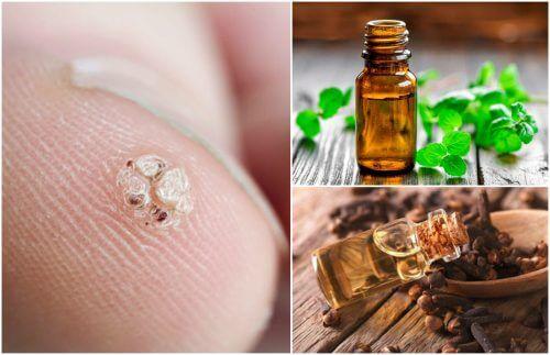 Negi, veruci: Simptome • Cauze • Tratament Naturist • Puterea Plantelor