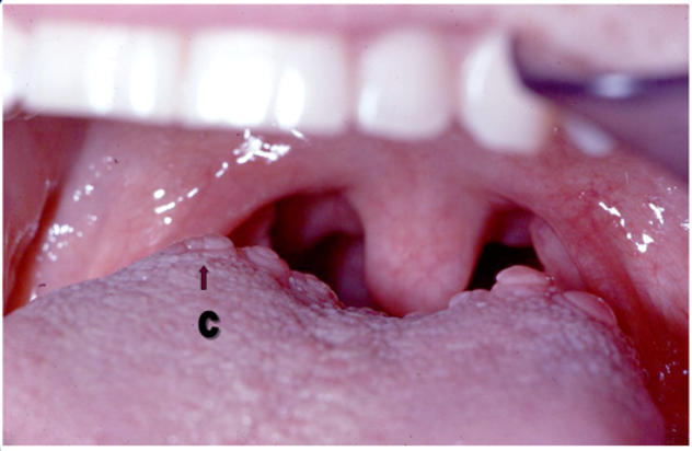 circumvallate papillae tongue treatment)