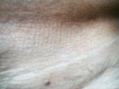 Condiloame, Condilom cervix plat