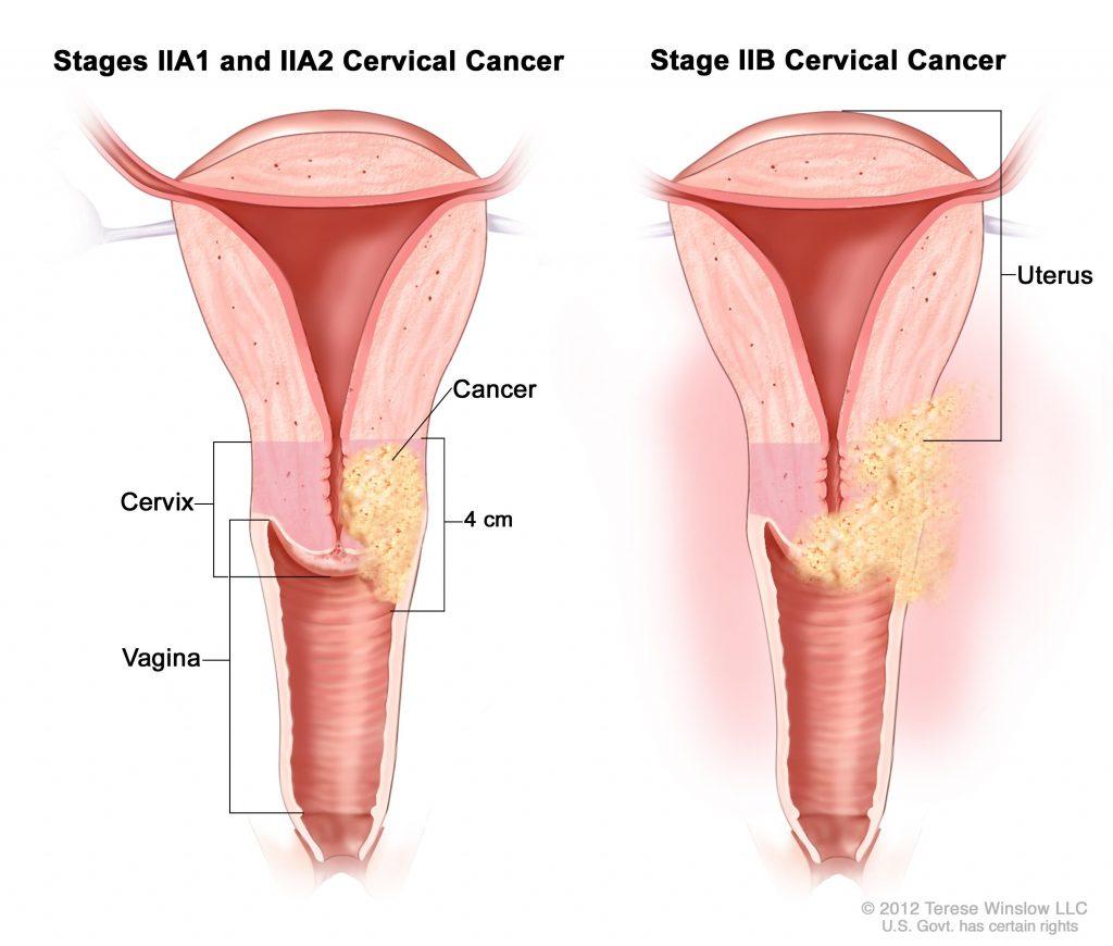 condilom la vagin la femei