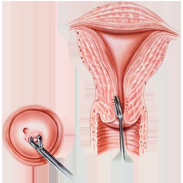 Conizatie de col uterin   Proceduri medicale