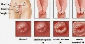 Tratament – Clinica Micomi