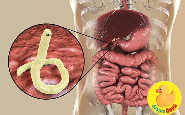 Ce medicamente elimină paraziții din intestine
