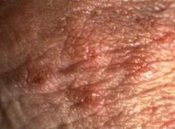 cum se elimină negii genitali din uter